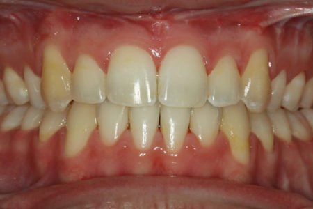 Underbite - Lower front teeth in front of upper teeth After