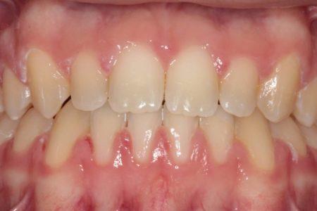 Spacing of teeth After