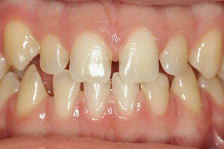 Spacing of teeth Before